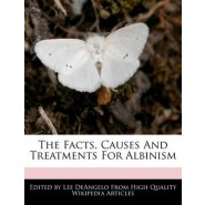 The Facts, Causes and Treatments for Albinism