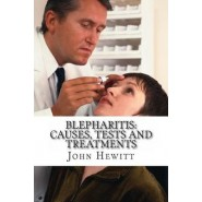 Blepharitis :Causes, Tests and Treatment