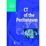 CT of the Peritoneum