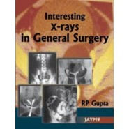 Interesting X-Rays in General Surgery